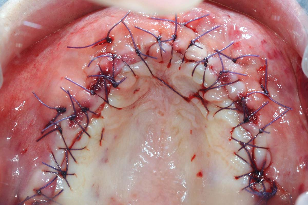 Single sutures and apical mattress sutures to reduce tension from the lip