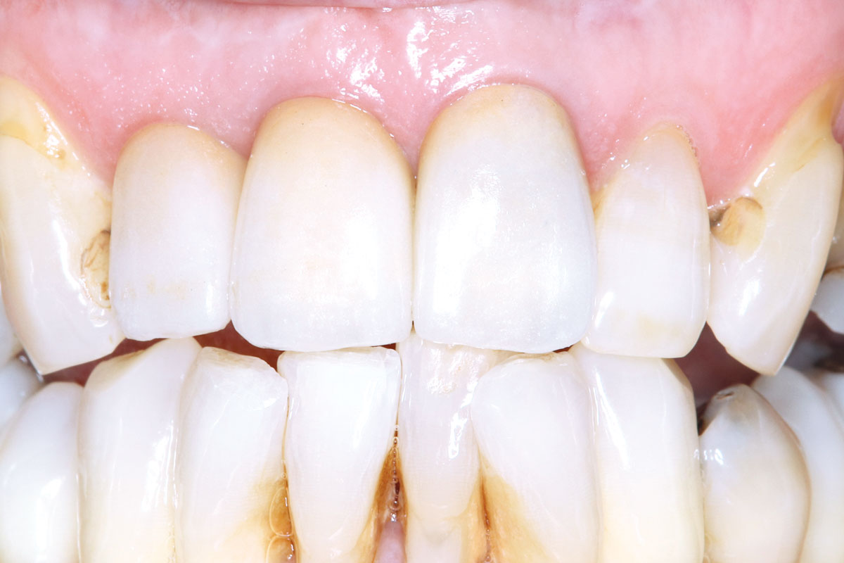 Fitting of definitive restorations