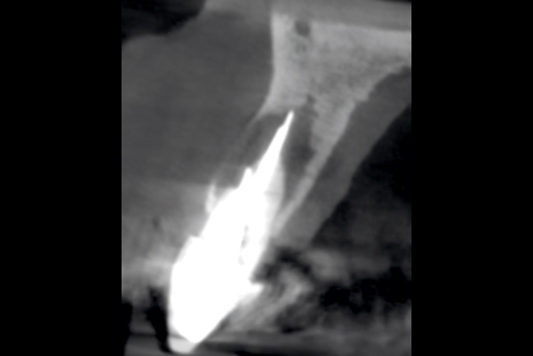 CT scan tooth 11 showing root resorption, buccal plate perforation and apical bone loss