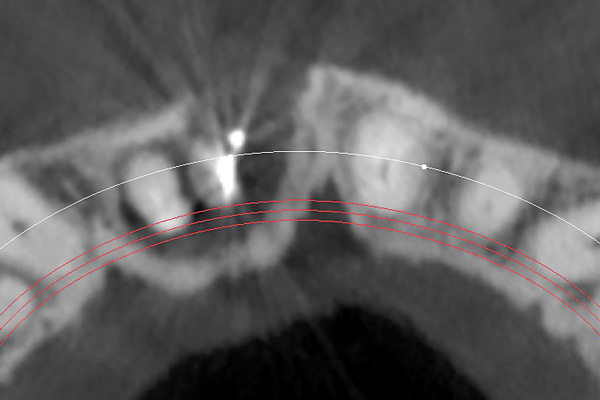 CT scan occlusal view. Apical defect area communicating both sockets