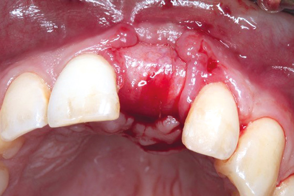 Situation after removal of permamem®