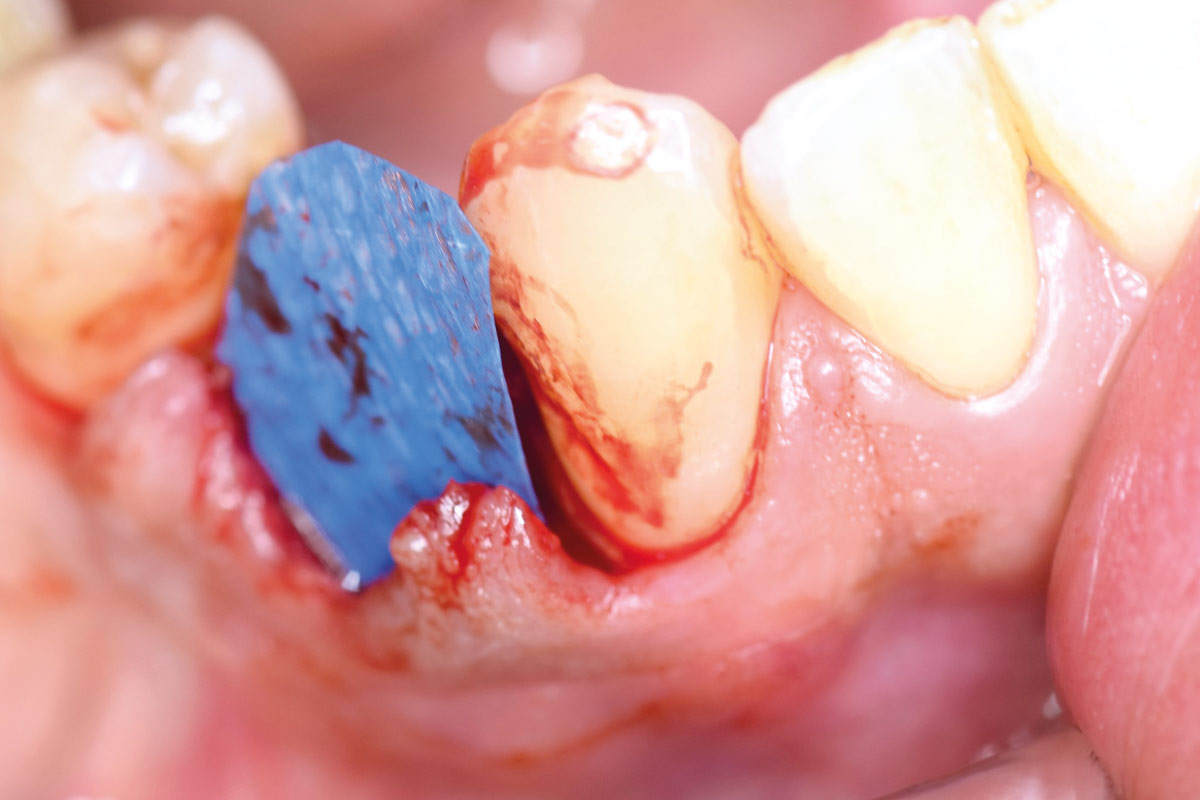 permamem® placed under the soft tissue to cover the bone wall defect