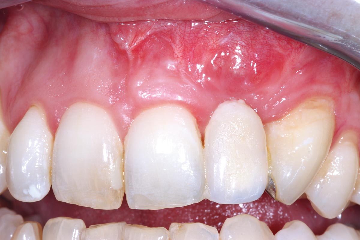 Clinical situation before implantation already showed improved aesthetics